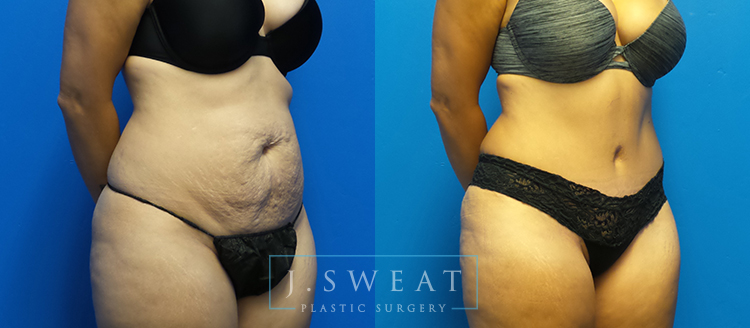 Tummy Tuck In Sacramento Abdominoplasty In Fair Oaks Ca
